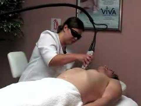 laser-hair-removal-treatment---viva-skin-care-center