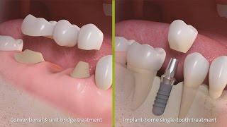 straumann-behandeling-met-een-driedelige-brug-amp-implantaatbehandeling-bij-een-ontbrekende-tand