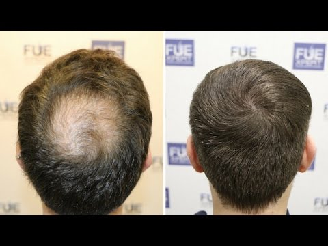 Image result for fue hair pics