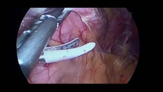 Gastric Sleeve  Vertical Sleeve Gastrectomy