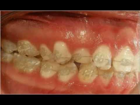 Distalización en Ortodoncia