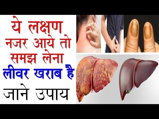 ?? ????? ??? ??? ?? ??? ???? ???? ???? ??   Symptoms Of Liver Disease   Liver Kharab Hone Ke Lakshan