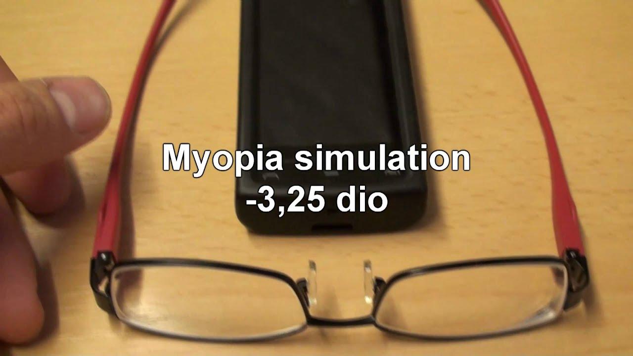 myopia szimulátor ha nem látod közelről, az távollátás