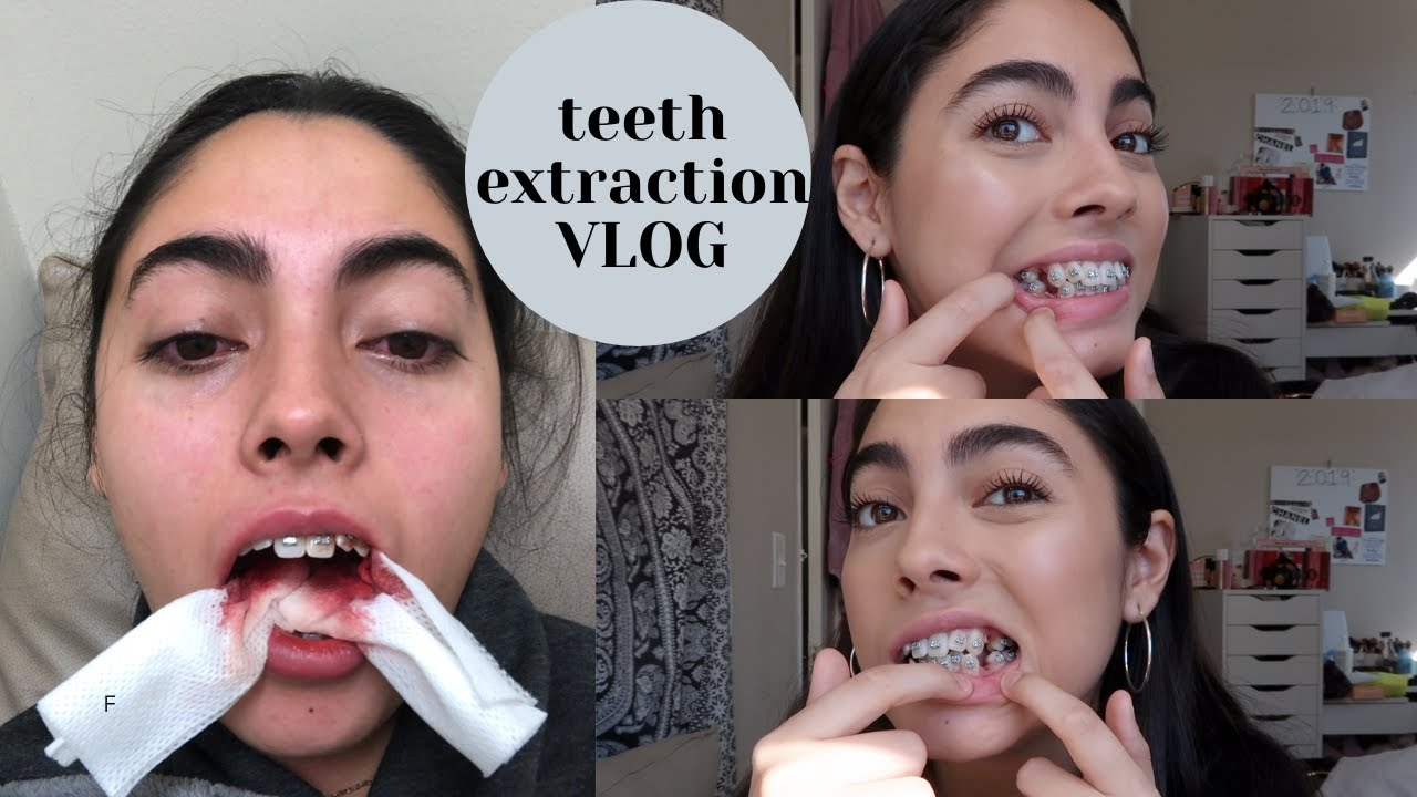 I Got 4 Teeth Extracted Braces Pt 2 Youtube