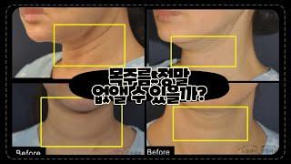 목거상술 [목주름수술] 로 선천적, 노화 목주름 개선 …