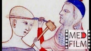 Костнопластическая трепанация © The technique of bone trepanation