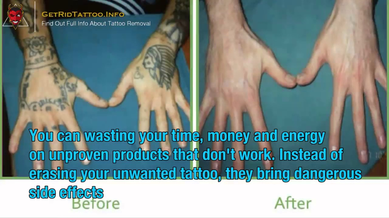 How Much To Get Tattoo Removed – Everything you must to know about ...