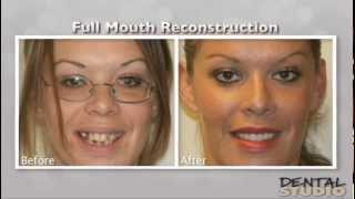 Full-Mouth Reconstruction -- Dental Studio 101