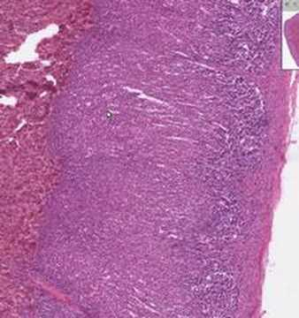 Shotgun Histology Adrenal