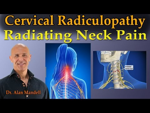 Cervical Radiculopathy (Radiating Neck Pain) - Dr. Mandell Live Stream
