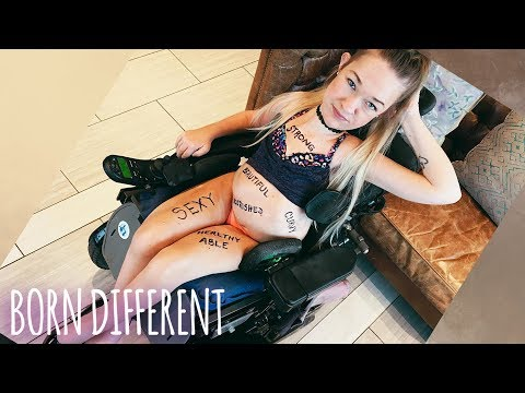 I'm Disabled AND Sexy   BORN DIFFERENT from YouTube · Duration:  8 minutes 11 seconds