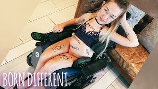I'm Disabled AND Sexy | BORN DIFFERENT