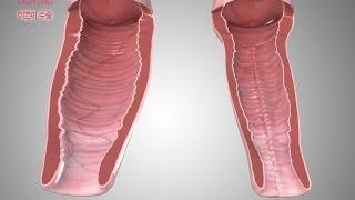 Repeat youtube video 레이디유로 이쁜이수술 3차원 시뮬레이션 영상