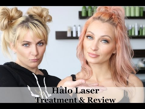 Halo Laser Treatment: Demo & Review!