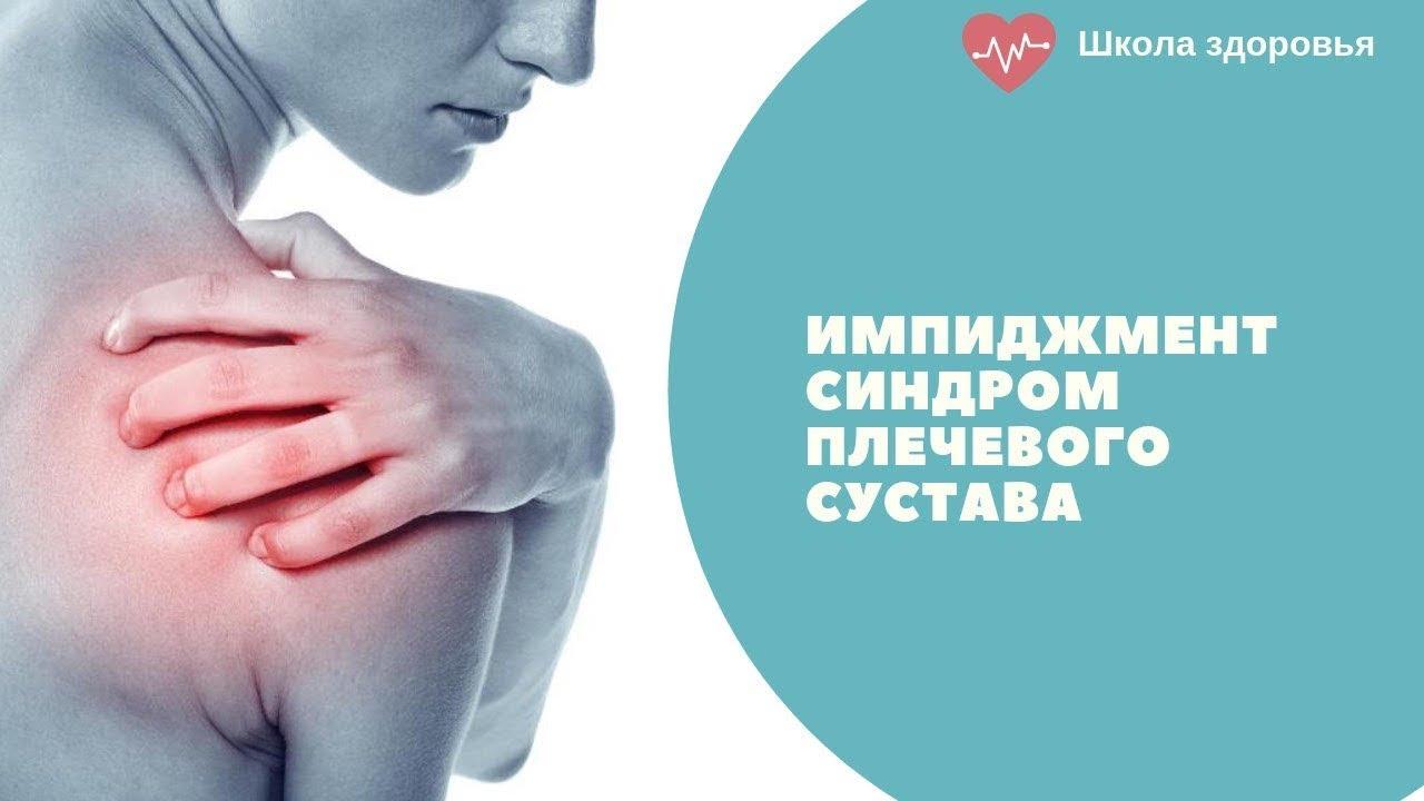 Импиджмент синдром плечевого сустава. Комплекс упражнений YTWL - YouTube