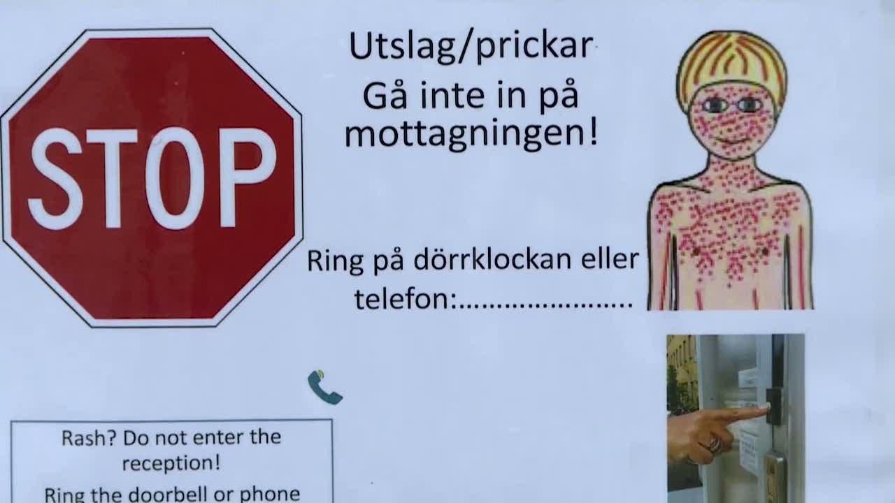 Mässling: Flera Fall Av Mässling Väntas I Göteborg