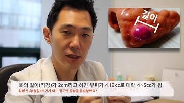 갑상선 혹(결절) 크기, 어느 정도 커야 증상을 유발할까?