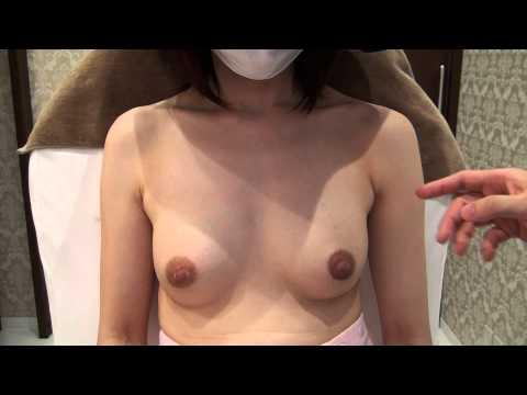 高須クリニック 豊胸手術後6カ月の経過 起きた状態 効果、腫れ、痛み、ダウンタイム、感触、自然さについて 美容整形外科動画