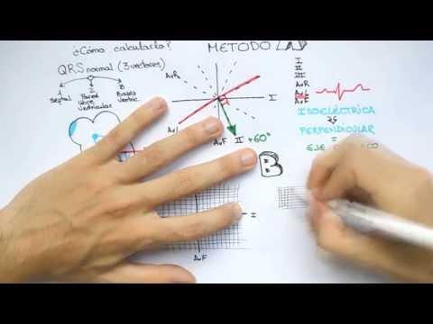 DRAW EKG 1: Eje Cardiaco ¿Cómo calcularlo?
