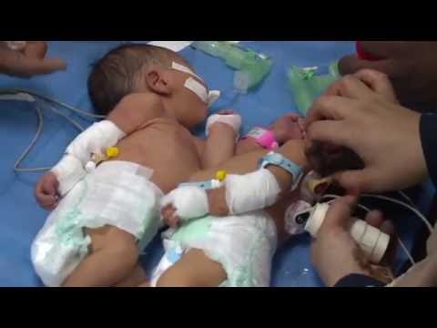 Conjoined twins separated successfully in Libya