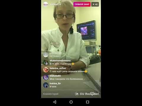 Диагностика проходимости маточных труб с помощью процедуры ЭхоГСГ на аппарате УЗИ