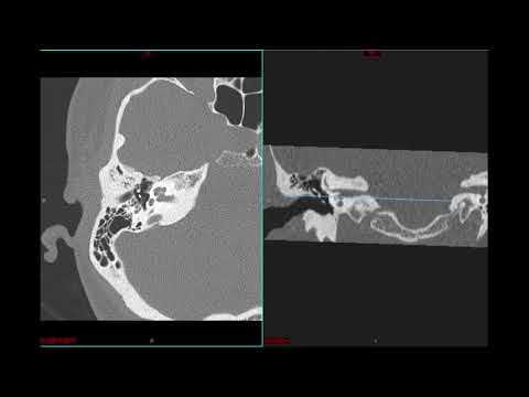 Dr. Harp Bedi\'s Temporal Bone CT Anatomy - YouTube