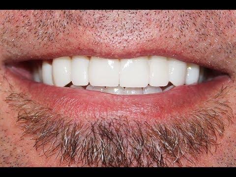 Video Procedure Of Invisalign With Dental Veneers At Cosmetic Dental Associates Of San Antonio Tx