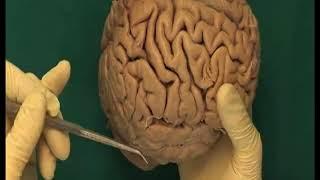 1.6 Step 1. Cerebral hemispheres, lobes, fissures, gyri and sulci