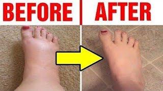 Foot Swelling | पैरों में सूजन क्यों होती है | Dr.Education