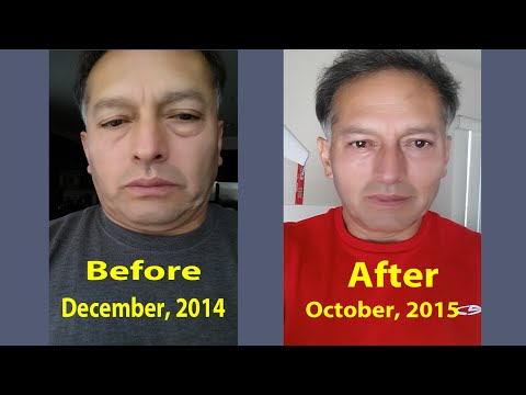 I rejuvenated my self over 7 months, got a radiant skin without wrinkles, regrew and recolored hair