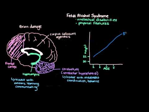 Khan Academy What is Fetal Alcohol Syndrome?