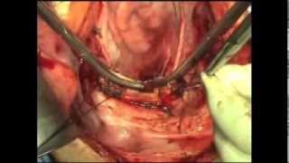 Repeat youtube video Total Abdominal Hysterectomy | Atlas of Gynecologic Surgery
