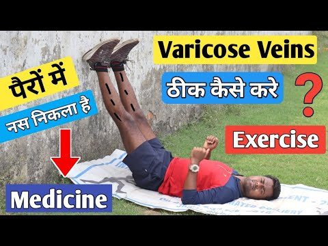 exerciții cygun din varicoză
