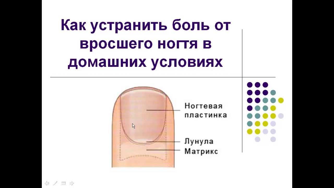 Народные средства для лечения ногтей ног от грибка
