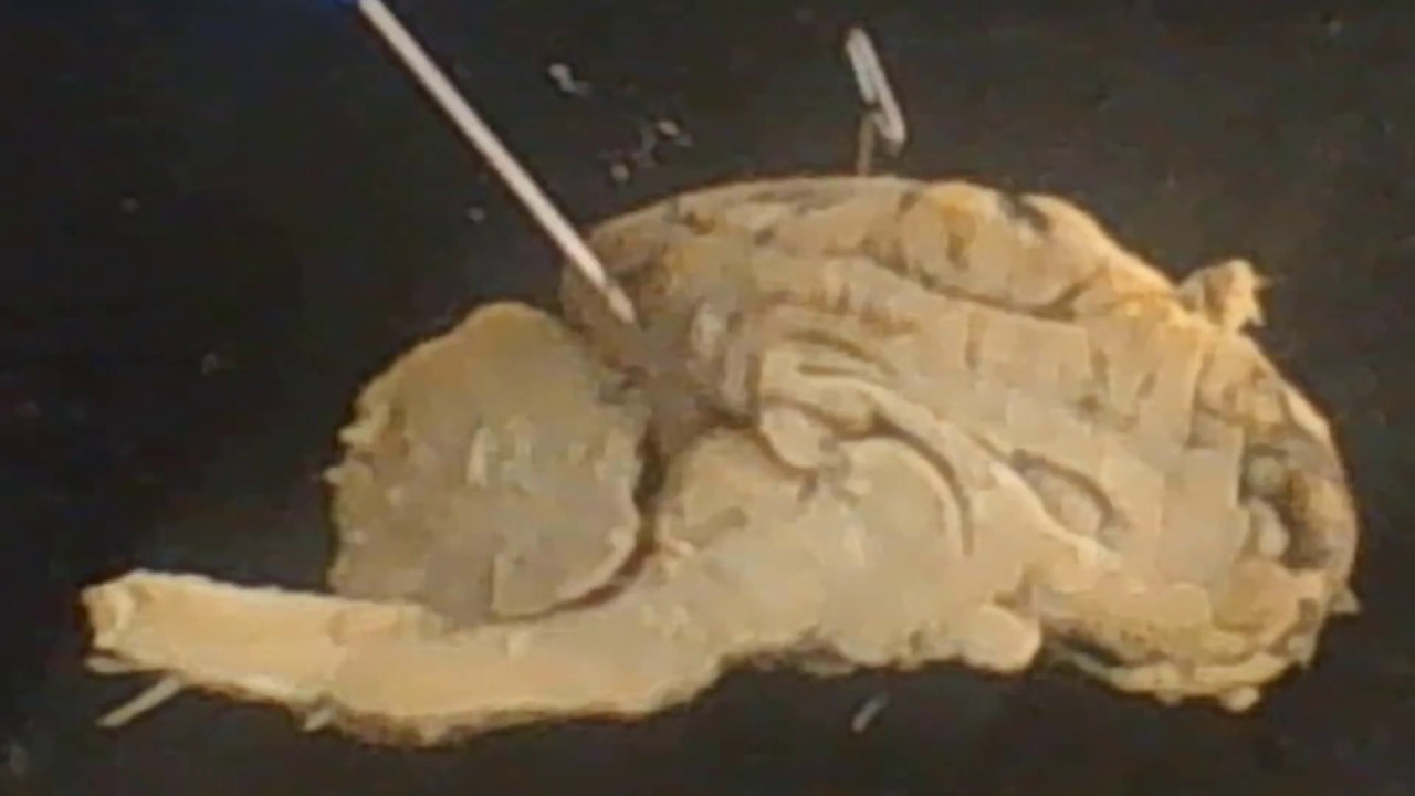 Review Of The Sheep Brain Anatomy Practical Exam Youtube