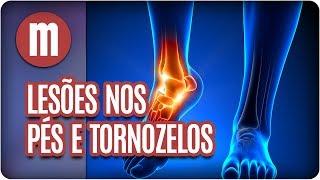 De fibromialgia tornozelos