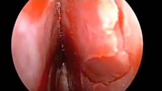 Septal stapler in Correction of Deviated Nasal Septum, Endoscopic Septoplasty in HD