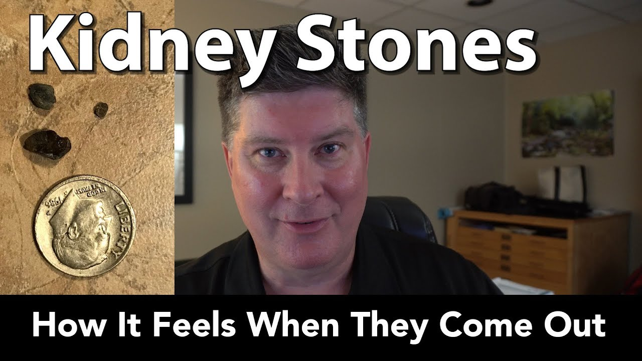 Kidney Stones What It S Like When They Come Out Youtube