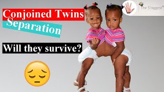 Conjoined Twins Separation: What Happened to Maria and Teresa ❓ ~ Body Bizarre!