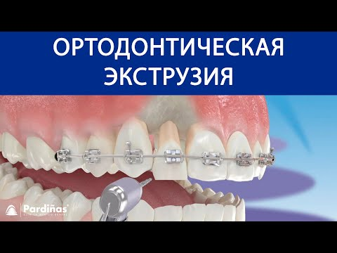 Ортодонтическая экструзия ©