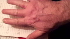 SKIN SPOTS BLOOD BLISTERS RASH SCABS ZOMBIE VIRUS AGENDA 21