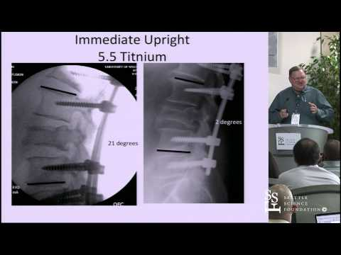 Spinal Instrumentation: Basic Concepts & Biomechanics by Paul Anderson, M.D.