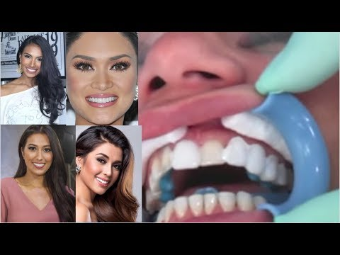 BEAUTY QUEEN SECRETS - Lumineers smile veneers cosmetic - Step by Step (HD)