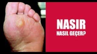 NASIR TEDAVİSİ NASIL YAPILIR  NASIR BİR GÜNDE NASIL GEÇER !!!