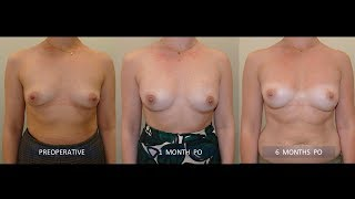 PREPECTORAL RECONSTRUCTION AFTER NIPPLE-SKIN MASTECTOMY (FOLLOWING NEOADJUVANT CHEMOTHERAPY)