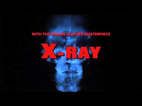 Cinematic Void Vol. 1: X-RAY (HOSPITAL MASSACRE)