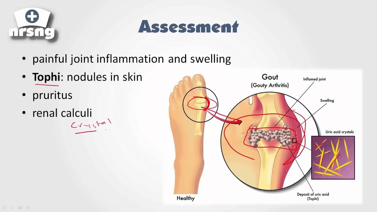 gout natural remedies bromelain gout causes diet