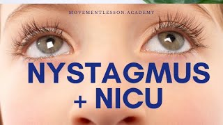 Triad of Nystagmus, head nodding and anamalous head position. Common in Infancy. Doesnot require any.