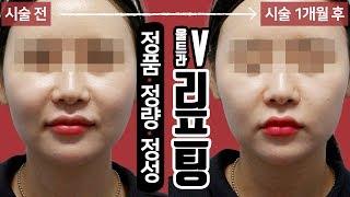 울트라V리프팅, 턱라인 더모톡신 시술 영상 톡스앤필 부…