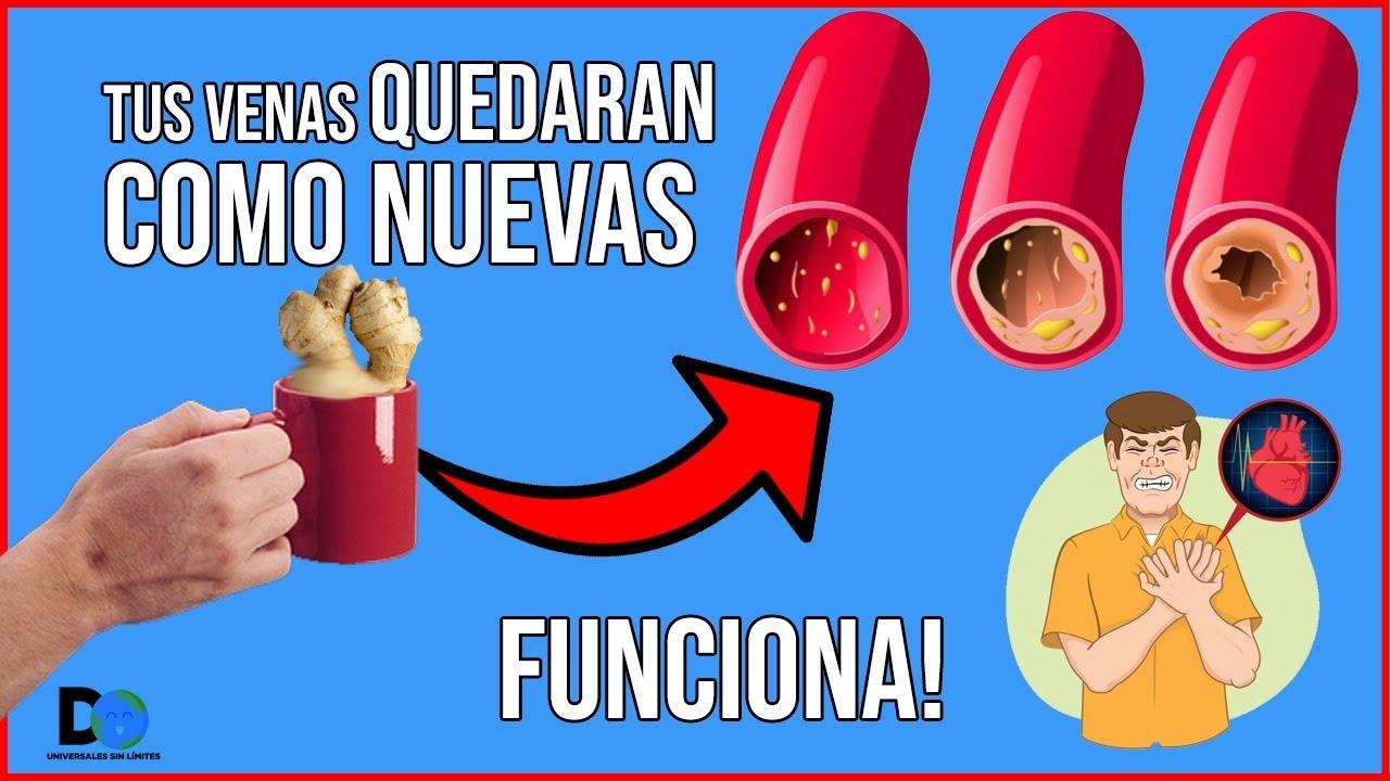 Adiós INFARTOS! Esta bebida se Chupa la Grasa de TUS VENAS tapadas con Colesterol